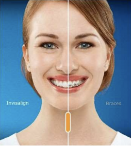 invisalign vs braces