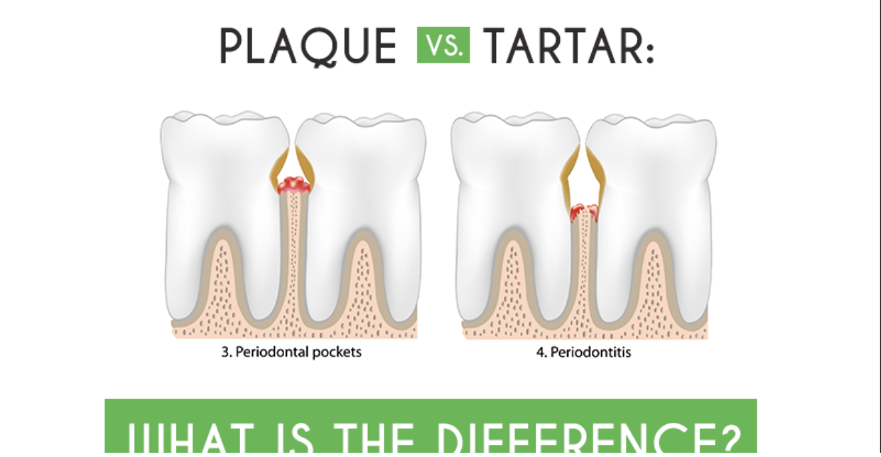 Differentiating Between Plaque and Tartar