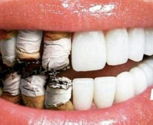 Smoking- mouth disease