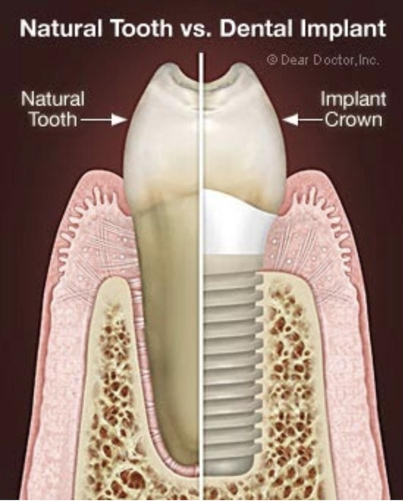 Food for Healthy Teeth and Bones