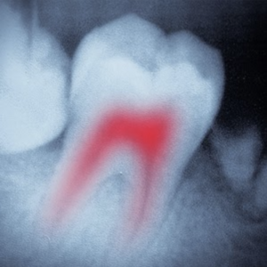 tooth xray