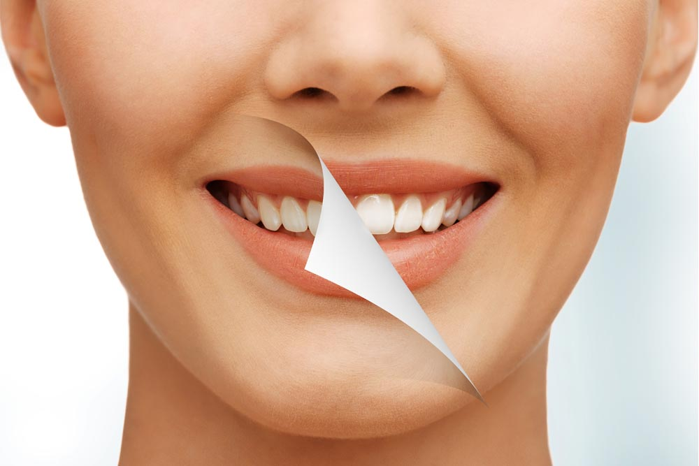 Top 5 Reasons For Teeth Whitening